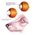 HAHD_NuclearSclerosis_Cataract